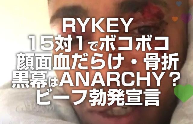 RYKEY 15対1で殴られ顔面血だらけ 黒幕はANARCHY?ビーフ勃発宣言